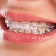 Invisalign for the price of BRACES! Crazy-good Utah deal!
