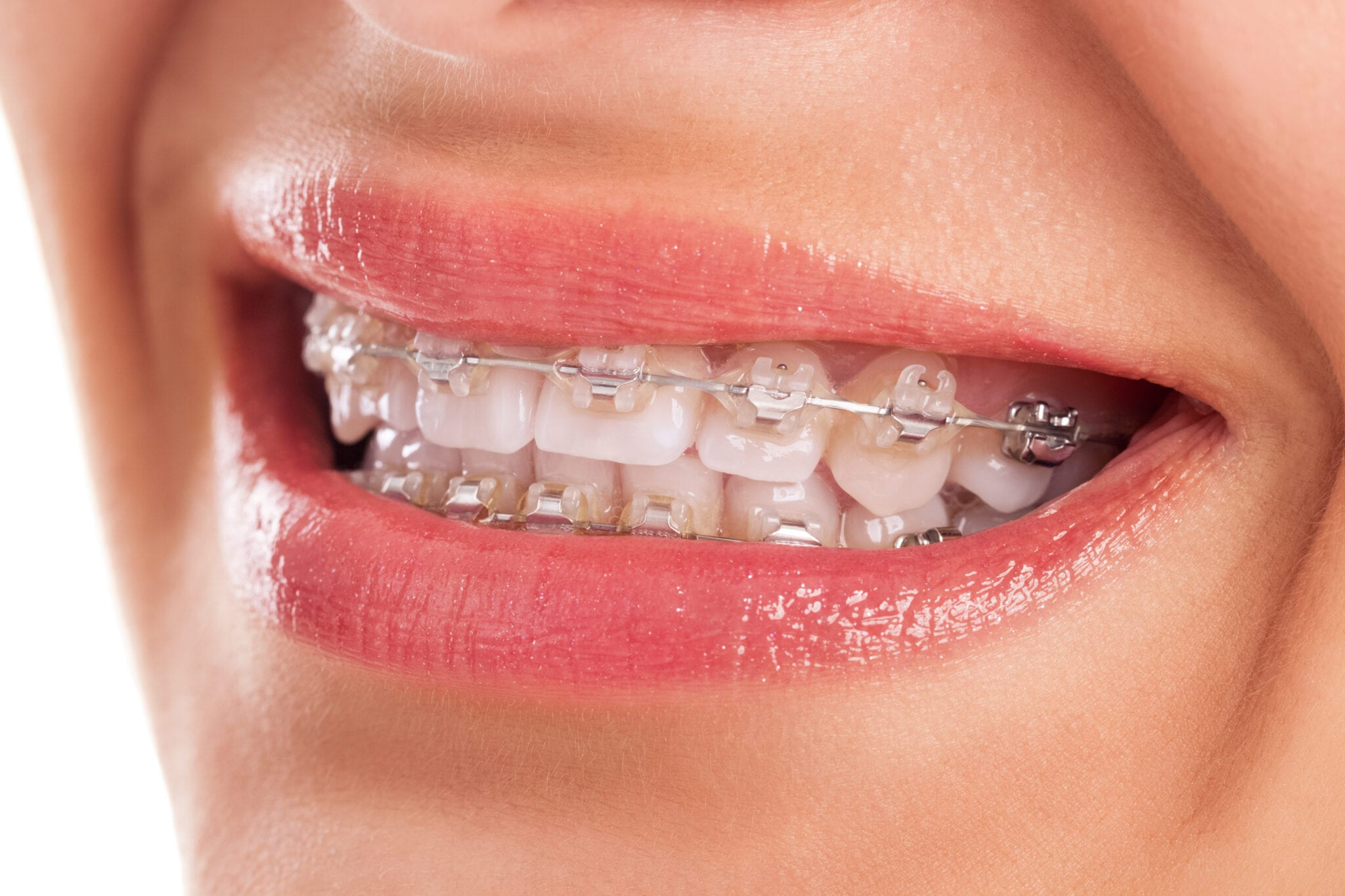 Utah Deal 300 Off Braces Or Invisalign Frugal Find
