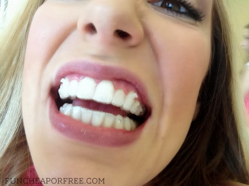 Getting invisalign as an adult