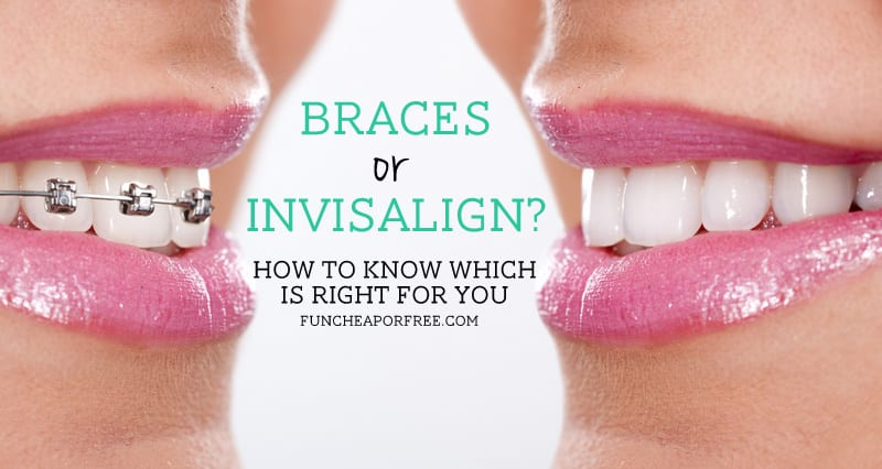 Braces or Invisalign - how to know which is right for you