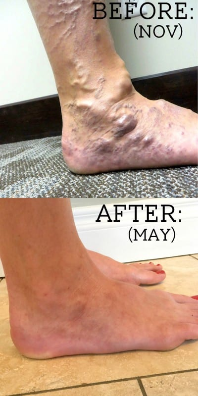 Before: A woman's foot and calf with bulging, purple veins. After: A woman's smooth foot from Fun Cheap or Free.